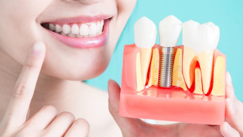 Tratamentos com implantes dentários são excelentes para solucionar problemas de falta de dentes